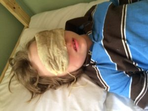Soothe Eyes Naturally with an Herbal Poultice